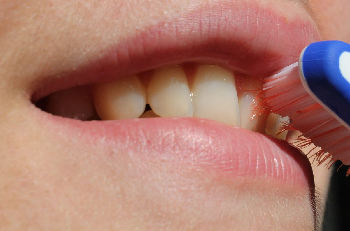 Be it a Missing Tooth or a Retouch, Keep Smiling with Dental Implants